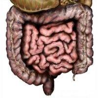 Лечение пневматоза кишечника
