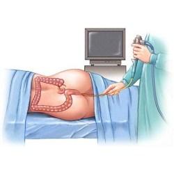 Ректоскопия кишечника