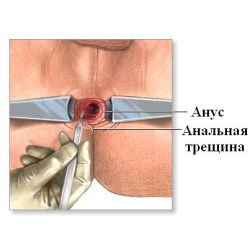 лечение хронических анальных трещин