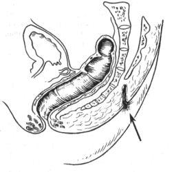 Эпителиальный копчиковый ход, операция и лечение